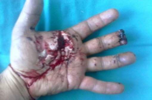 Hand injury from firecrackers